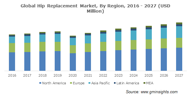 Global Hip Replacement Market
